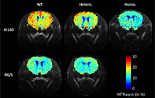 Two technologies are better than one for understanding Huntington's disease