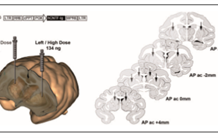 Three-dimensional histology for PET quantification of brain imaging